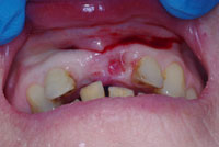 1.-Missing-upper-central-incisors_small