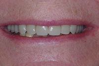 4.-Denture-fitted_small